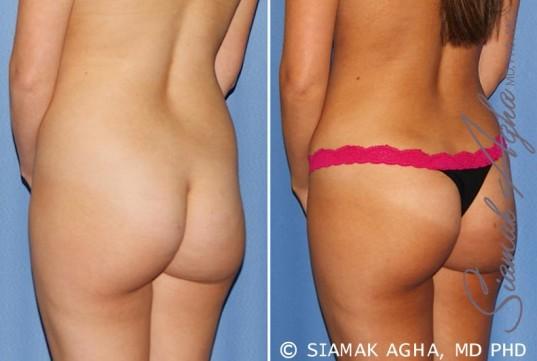 orange-county-tummy-tuck-patient-25-back-left