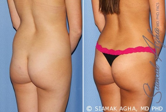 orange-county-tummy-tuck-patient-25-back-right