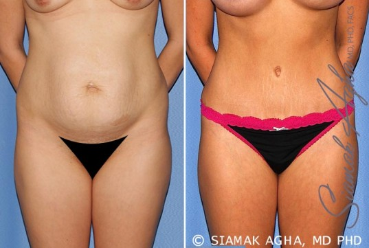 orange-county-tummy-tuck-patient-25-front-1