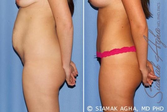 orange-county-tummy-tuck-patient-25-left