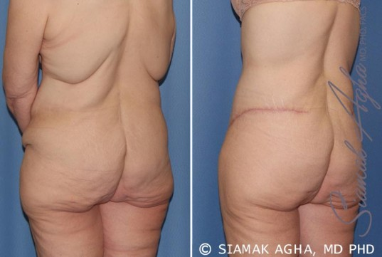 orange-county-tummy-tuck-patient-32-back-left
