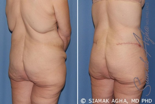 orange-county-tummy-tuck-patient-32-back-right