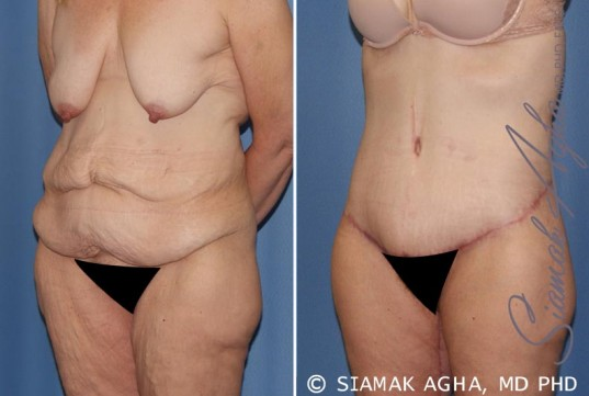 orange-county-tummy-tuck-patient-32-front-left