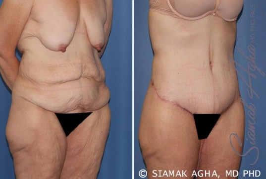 orange-county-tummy-tuck-patient-32-front-right