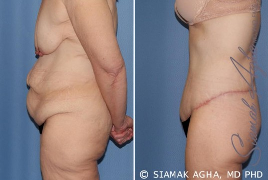 orange-county-tummy-tuck-patient-32-left