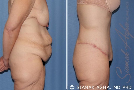 orange-county-tummy-tuck-patient-32-right