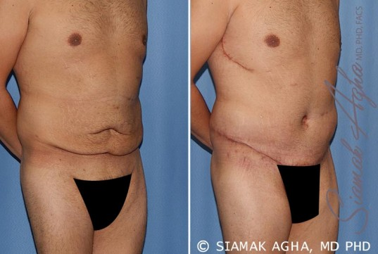orange-county-tummy-tuck-patient-33-front-right