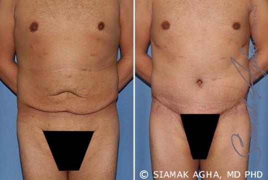 orange-county-tummy-tuck-patient-33-front
