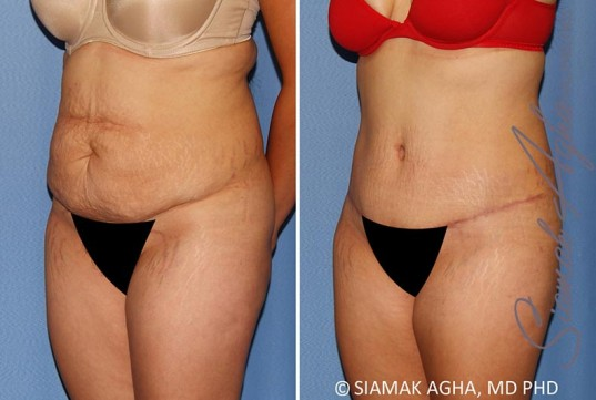 orange-county-tummy-tuck-patient-34-front-left-1