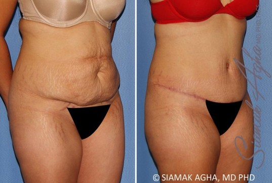 orange-county-tummy-tuck-patient-34-front-right-1