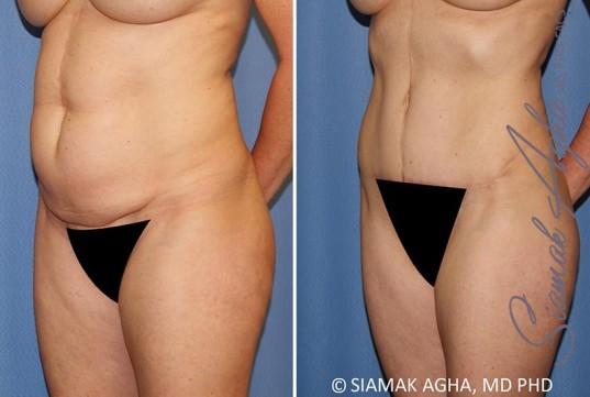 orange-county-tummy-tuck-patient-35-front-left