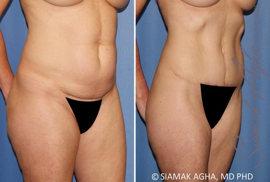 orange-county-tummy-tuck-patient-35-front-right
