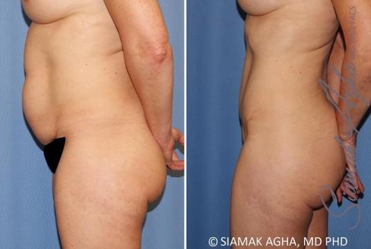 orange-county-tummy-tuck-patient-35-left