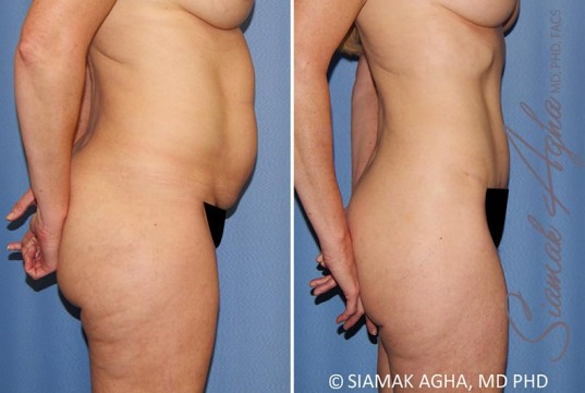 orange-county-tummy-tuck-patient-35-right