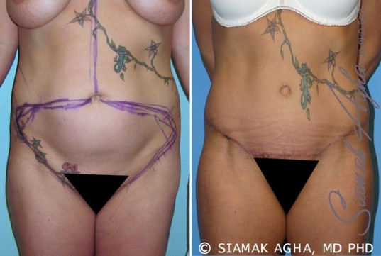 orange-county-tummy-tuck-patient-6-front