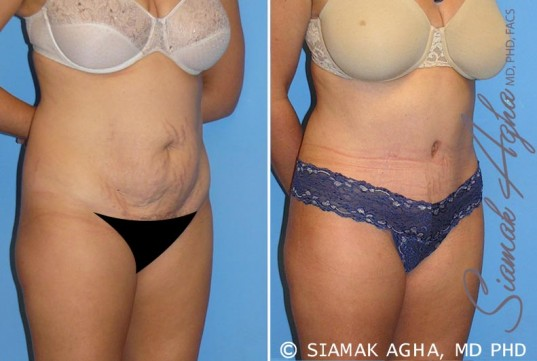 orange-county-tummy-tuck-patient-8-front-right