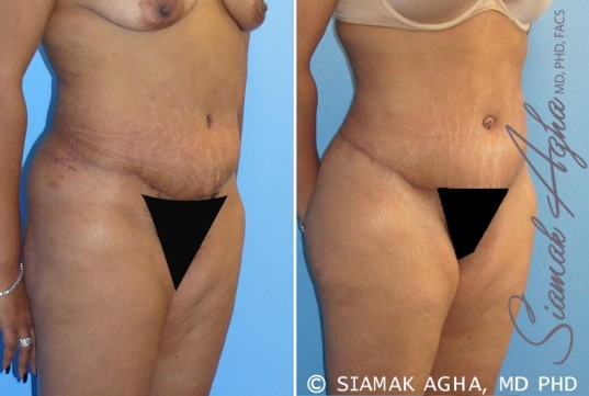 orange-county-tummy-tuck-revision-patient-1-front-right