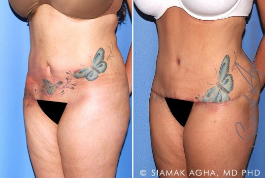 orange-county-tummy-tuck-revision-patient-10-front-left