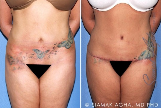 orange-county-tummy-tuck-revision-patient-10-front