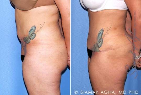orange-county-tummy-tuck-revision-patient-10-left
