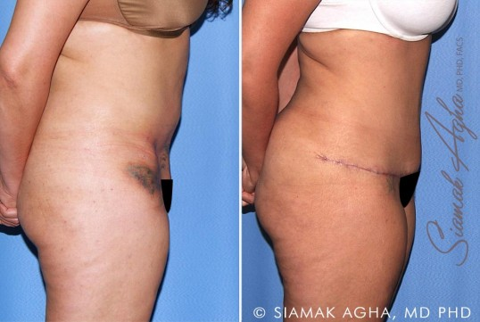 orange-county-tummy-tuck-revision-patient-10-right