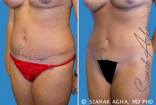 orange-county-tummy-tuck-revision-patient-2-front-left
