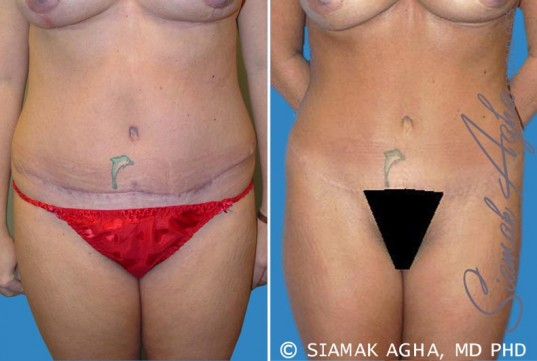 orange-county-tummy-tuck-revision-patient-2-front