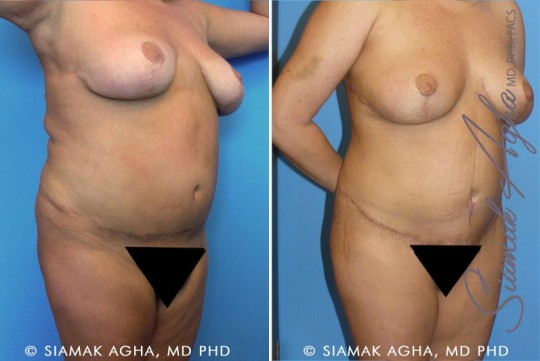 orange-county-tummy-tuck-revision-patient-3-front-right