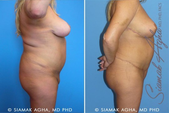 orange-county-tummy-tuck-revision-patient-3-right