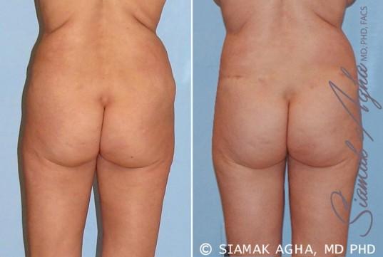 orange-county-tummy-tuck-revision-patient-4-back