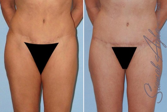 orange-county-tummy-tuck-revision-patient-4-front