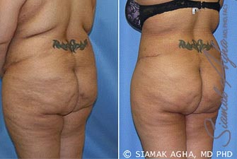 orange-county-tummy-tuck-revision-patient-5-back-left