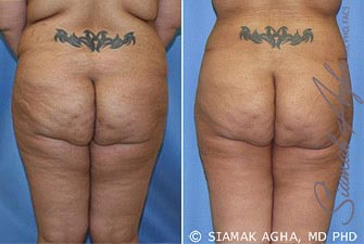 orange-county-tummy-tuck-revision-patient-5-back