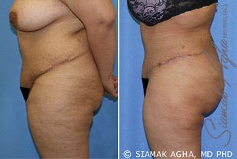 orange-county-tummy-tuck-revision-patient-5-left