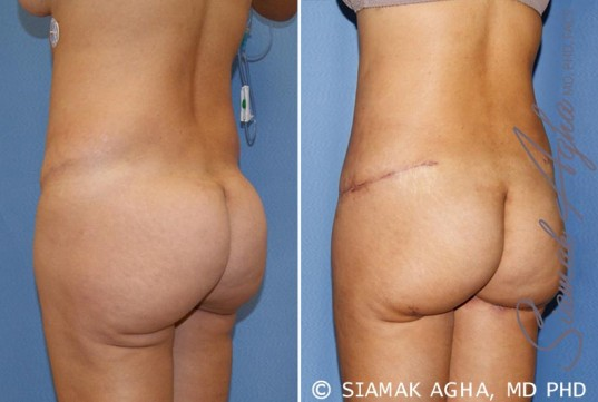 orange-county-tummy-tuck-revision-patient-6-back-left