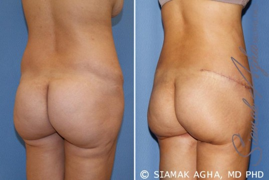 orange-county-tummy-tuck-revision-patient-6-back-right