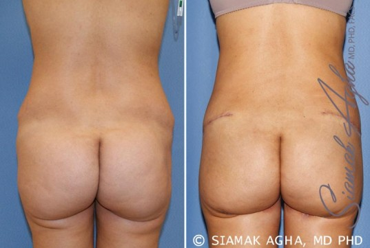 orange-county-tummy-tuck-revision-patient-6-back