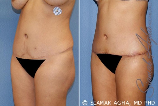 orange-county-tummy-tuck-revision-patient-6-front-left