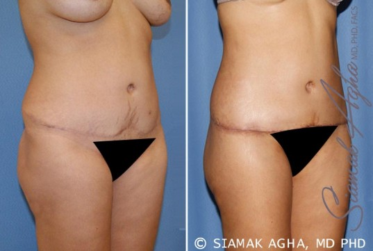 orange-county-tummy-tuck-revision-patient-6-front-right