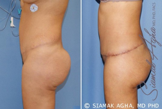 orange-county-tummy-tuck-revision-patient-6-left