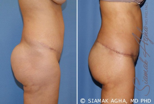 orange-county-tummy-tuck-revision-patient-6-right