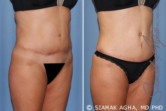 orange-county-tummy-tuck-revision-patient-7-front-right