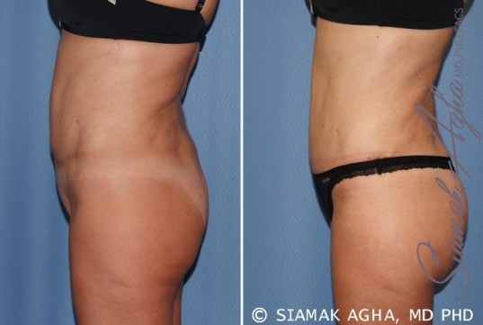 orange-county-tummy-tuck-revision-patient-7-left