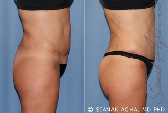orange-county-tummy-tuck-revision-patient-7-right