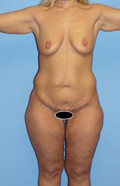 abdom-022