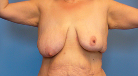 breast-reshaping-012