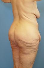 butt-052