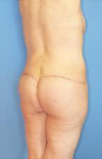 butt-062