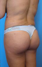 butt-092