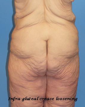 thigh2